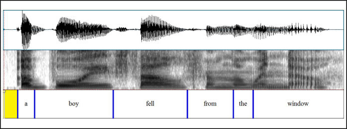 Voice frequency chart